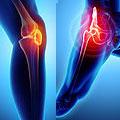 knee-hip-pain